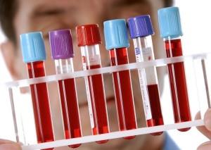 Повышение триглицеридов - причина многих заболеваний