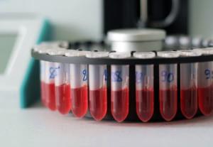 Триглицериды - основной источник энергии для клеток