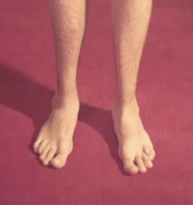 perelom-mizinca-na-noge