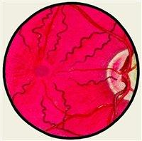 angiopatiya-sosudov-glaz