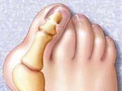 kostochka na nogah