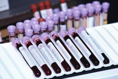 Расшифровка анализа крови на лимфоциты