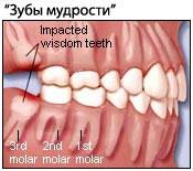 zub-mudrosti
