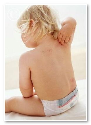 Атопический дерматит под коленками у детей