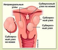 Как проявляется фибромиома матки