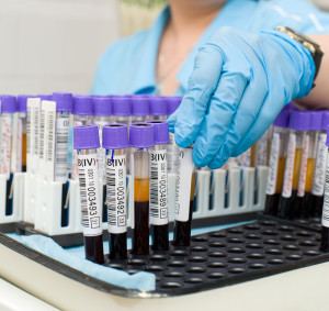 Перед сдачей анализа крови нельзя голодать