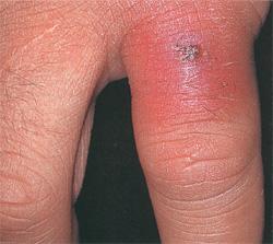 Чем опасна миома матки если ее не лечить (фото и описание последствий)