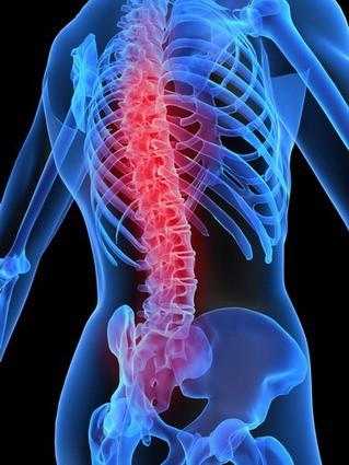 Признаки остеохондроза различных отделов позвоночника