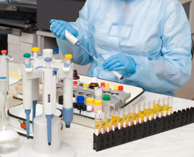 Анализ на иммуноглобулин как делают