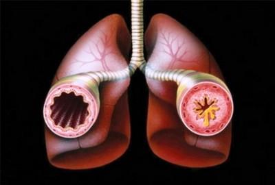 помощь при астме