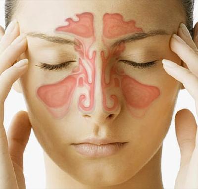Основные причины появления синусита