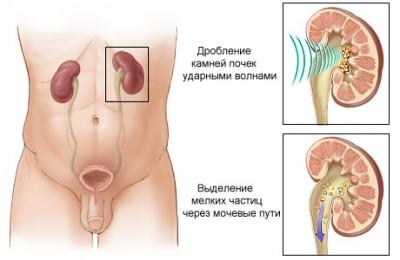 Упражнения александра бонина видео при остеохондрозе шейного