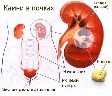 Признаки камней в почках и лечение болезни