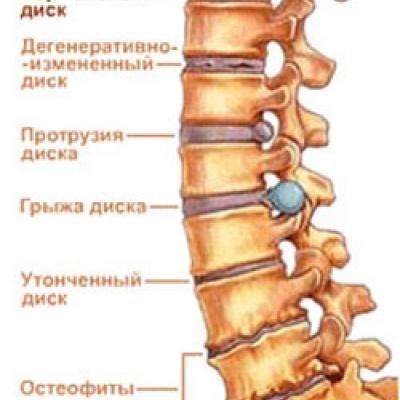Спинная грыжа. Симптомы, лечение, профилактика