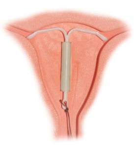 Спираль Мирена предохраняет от беременности в течение 5 лет