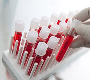Стафилококковую инфекцию можно диагностировать различными методами