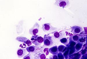 Хламидии могут находится в организме и не проявлять себя