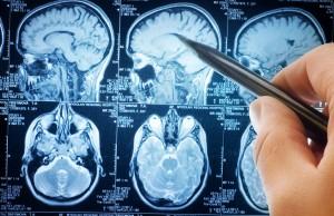 Диагностируют болезнь путем сканирования головного мозга