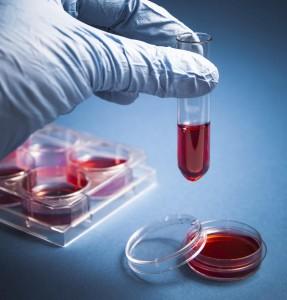 Лабораторная диагностика плазмы необходима при скрытой гиперкальциемии
