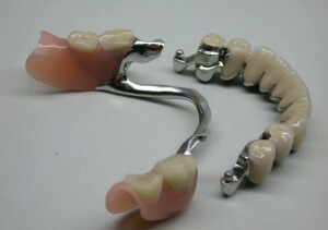 Бюгельный протез используется в целях протезирования зубов