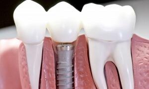 При использовании зубных имплантов создается максимально удобная конструкция