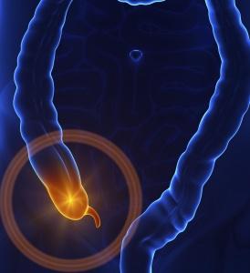 Причины появления аппендицита связывают с несколькими теориями