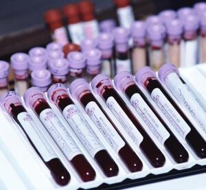 Андростендион присутствует в крови с самого рождения человека