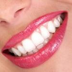 Отбеливание зубов перекисью водорода в домашних условиях: что нужно знать?