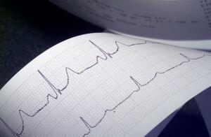 Кардиограмма позволяет диагностировать заболевания сердца