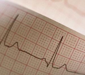 Регулярность сокращений сердца является важным показателем кардиограммы