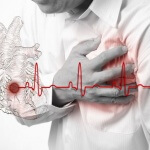 Как расшифровать кардиограмму сердца и как правильно подготовиться к ней