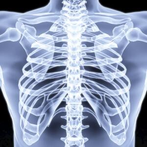Закрытая травма грудной клетки часто имеет место во время перелома