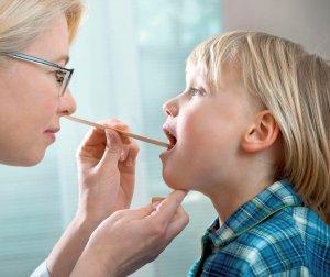 При тонзиллите наблюдается патология в области миндалин