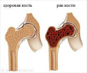 Рак костей. Лечение