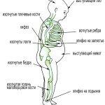 Рахит у грудничков: лечение патологии и диагностика