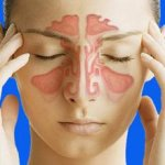 Чем отличается синусит от гайморита, особенности проявления этих заболеваний
