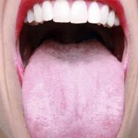 Профилактика кандидозного стоматита