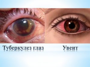 Туберкулез глаз: симптомы