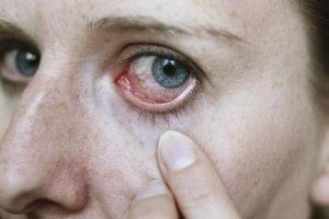 Лечение туберкулеза глаз