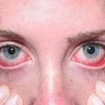 Туберкулез глаз: симптомы и причины заболевания, лечение