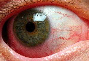 Какие функции глаз поражает увеит?