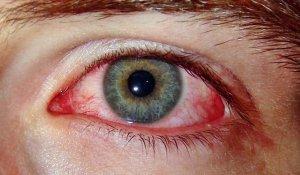 Почему в глазу лопнул сосуд?