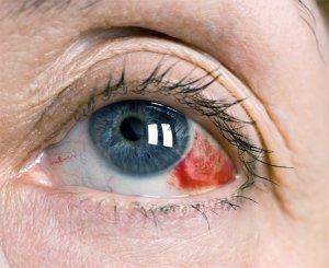 Симптомы и виды кровоизлияний