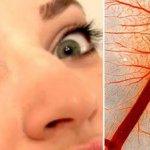 Лопнул сосуд в глазу: лечение, причины и симптомы