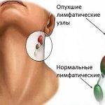 Подключичные лимфоузлы: воспаление, опухание и лечение