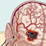 Нарушение мозгового кровообращения: лечение народными средствами, причины, признаки патологии