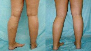Тромб в ноге: симптомы