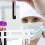 Как берут анализ на ВПЧ у мужчин: современная диагностика