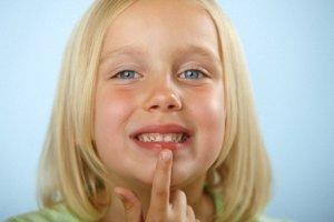 Профилактика заед в углах рта