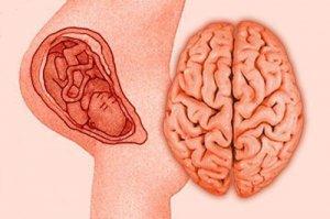 Постгипоксическая энцефалопатия